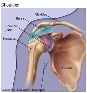 bursitis_shoulder
