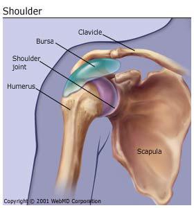 bursitis_shoulder