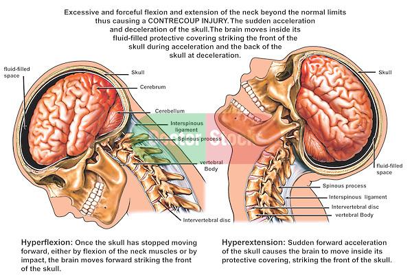 dizziness | Dr. Vittoria Repetto's Blog: